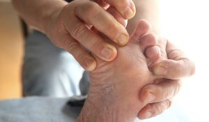 Home Remedies for Athlete's Foot – 10 Natural Treatments